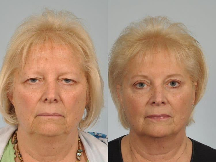 62 year-old woman before and after endoscopic browlift and upper lid blepharoplasty.