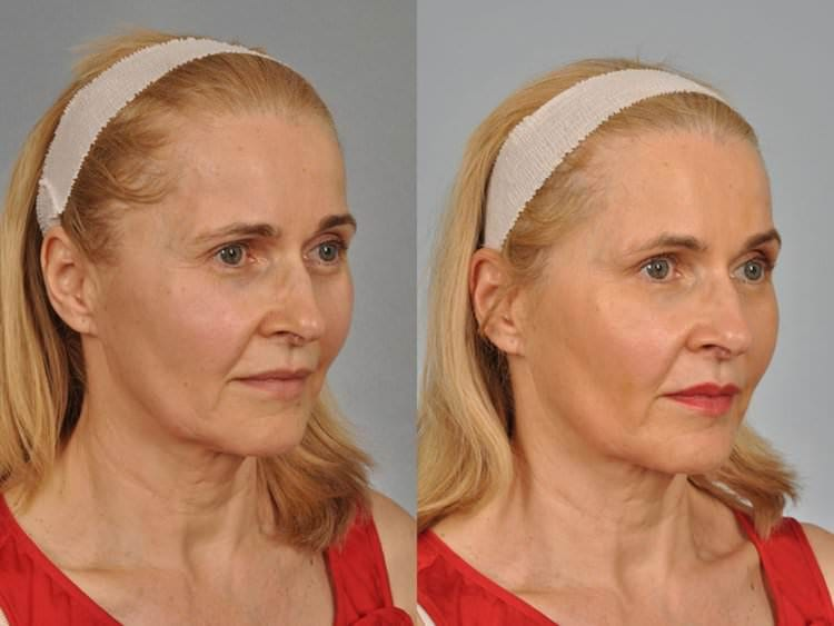 A 56 year-old woman who had Botox injected under the lower eyelid lashes to decrease the amount of fullness in lower lids.