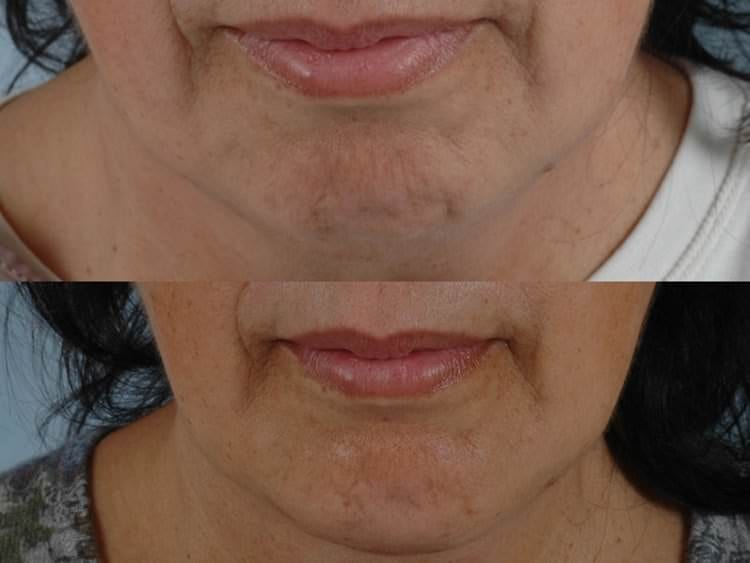 64 year-old woman before and after isolated chin implant.