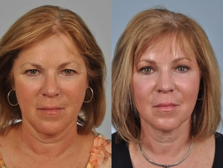 58 year-old woman before and after upper blepharoplasty, endoscopic brow lift, and laser resurfacing to her full face.