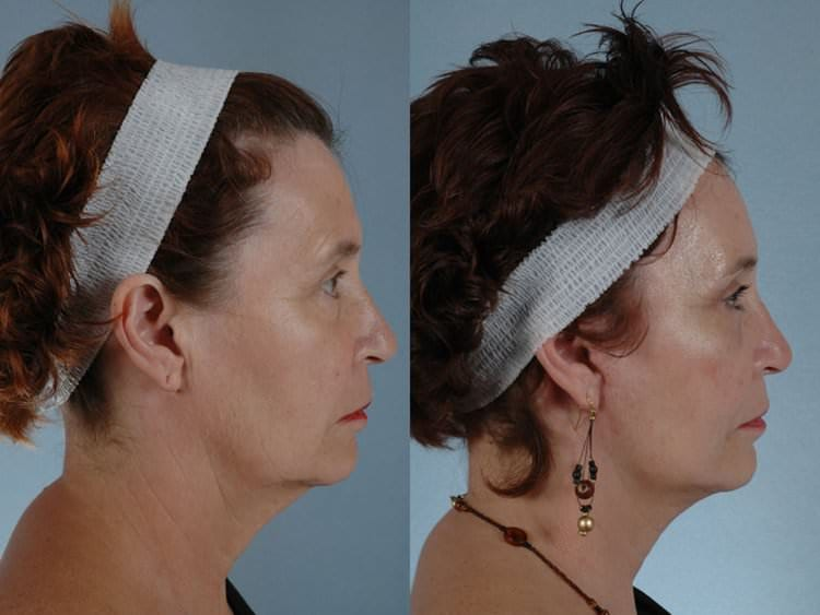 63 year-old woman before and after endoscopic brow lift, endoscopic midface lift using Micromidfacelift, facelift, fat transfer and RestylaneTM injection. Laser micropeel using Sciton dual erbium laser also performed.
