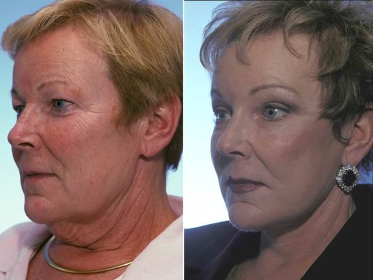64 year-old woman before and after upper blepharoplasty, midface lift, face and neck lift.