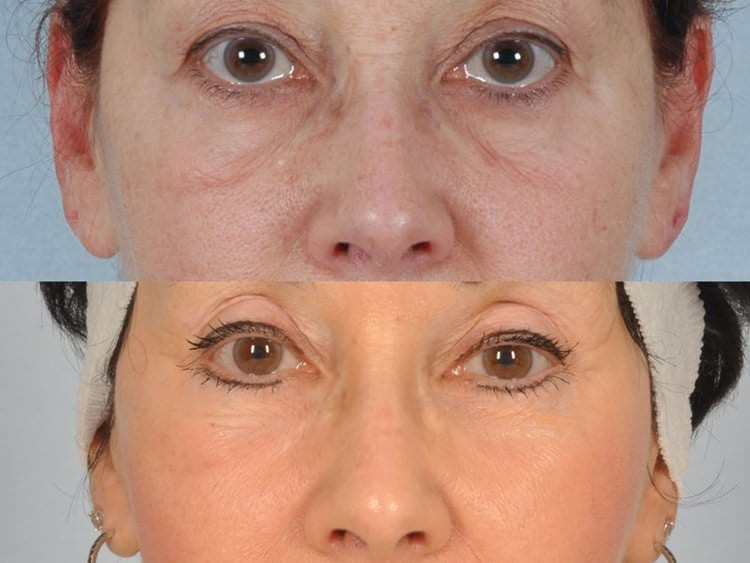 54 year-old woman with midcheek festoons and deep hollows under the eyelids treated with liposculpture and dual erbium laser resurfacing.