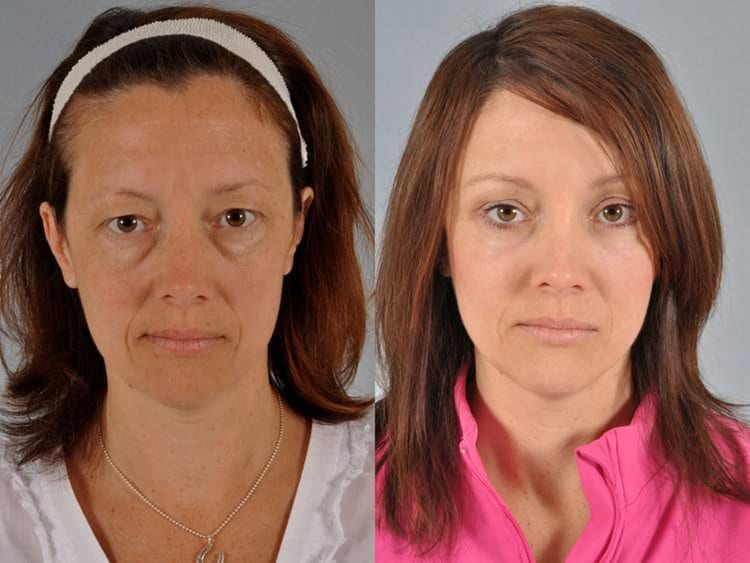 45 year-old woman before and after brow reshaping, upper and lower blepharoplasty, full face laser and Micromidfacelift midface lift procedure (endoscopic cheek lift, liposculpture).