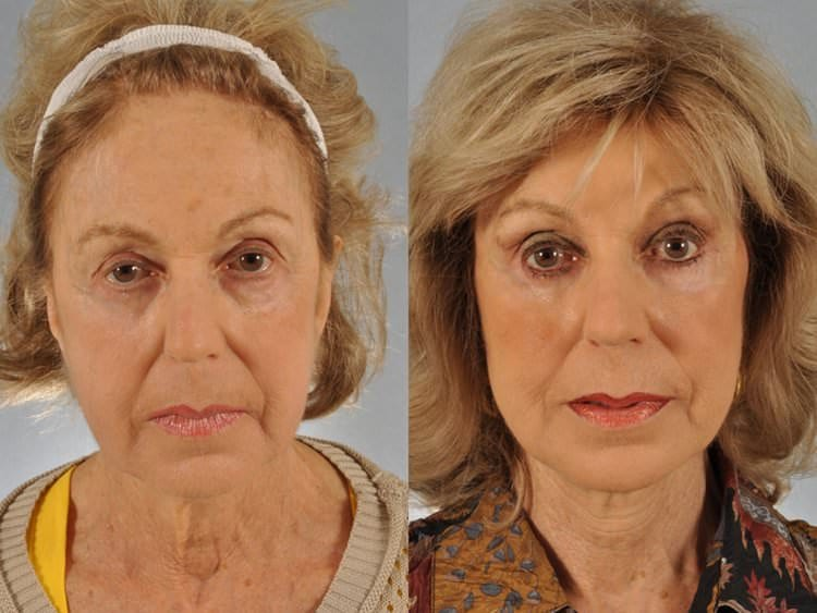 75 year-old woman before and after endoscopic brow lift, midface lift using the Micromidfacelift technique, fat transfer (liposculpture) and face lift.