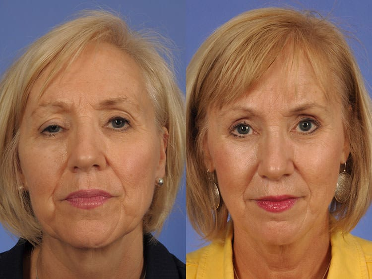 59 year-old woman before and after ptosis and retraction repair.