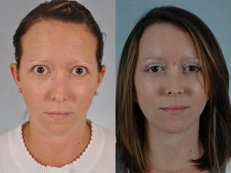 32 year-old woman before and after upper and lower eyelid surgery to relieve upper and lower eyelid retraction.