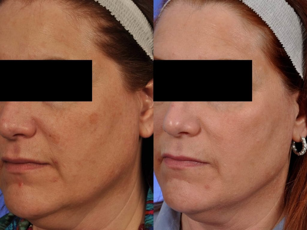A 51-year-old woman before and after four full-face BBL treatments. Notice skin tone improvements and reduced skin damage.
