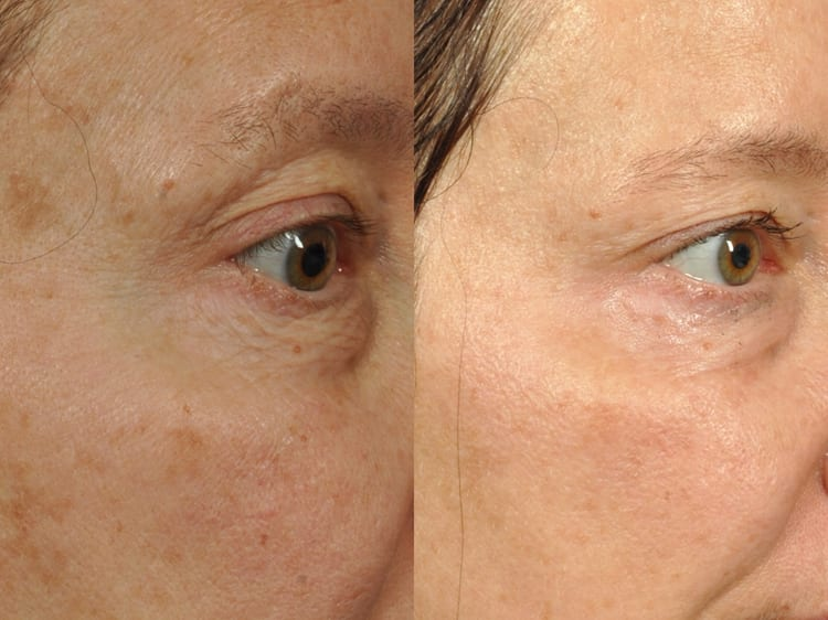 48 year-old woman who had 5 treatments of Dermapen to full face, including aggressive treatment to treat under eye wrinkles and crepiness.