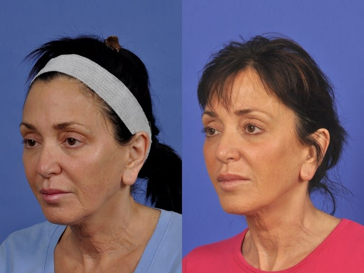 60 year-old woman who had ThermiTight to the neck and jowls.