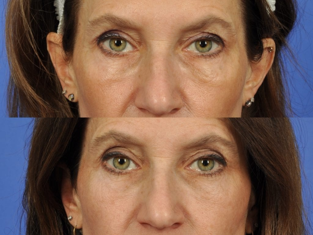 53 year old woman who had 3 Intracel to Lower lids for festoons