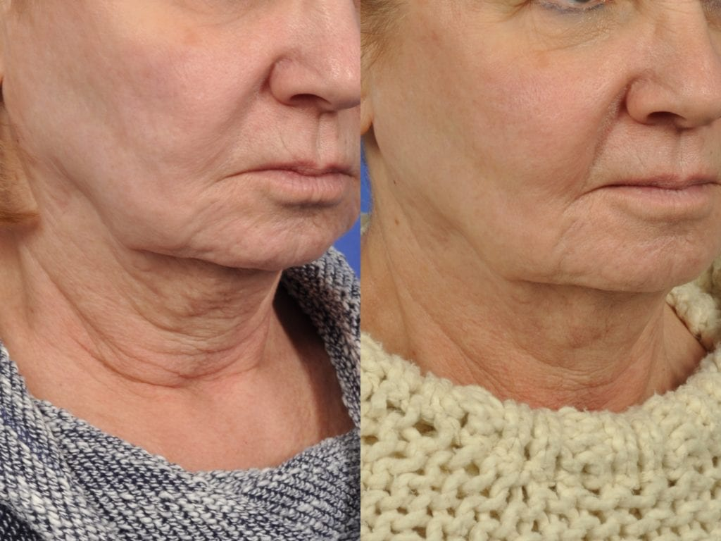 68 year old woman who had 4 Intracel Treatments with PRP top face and neck