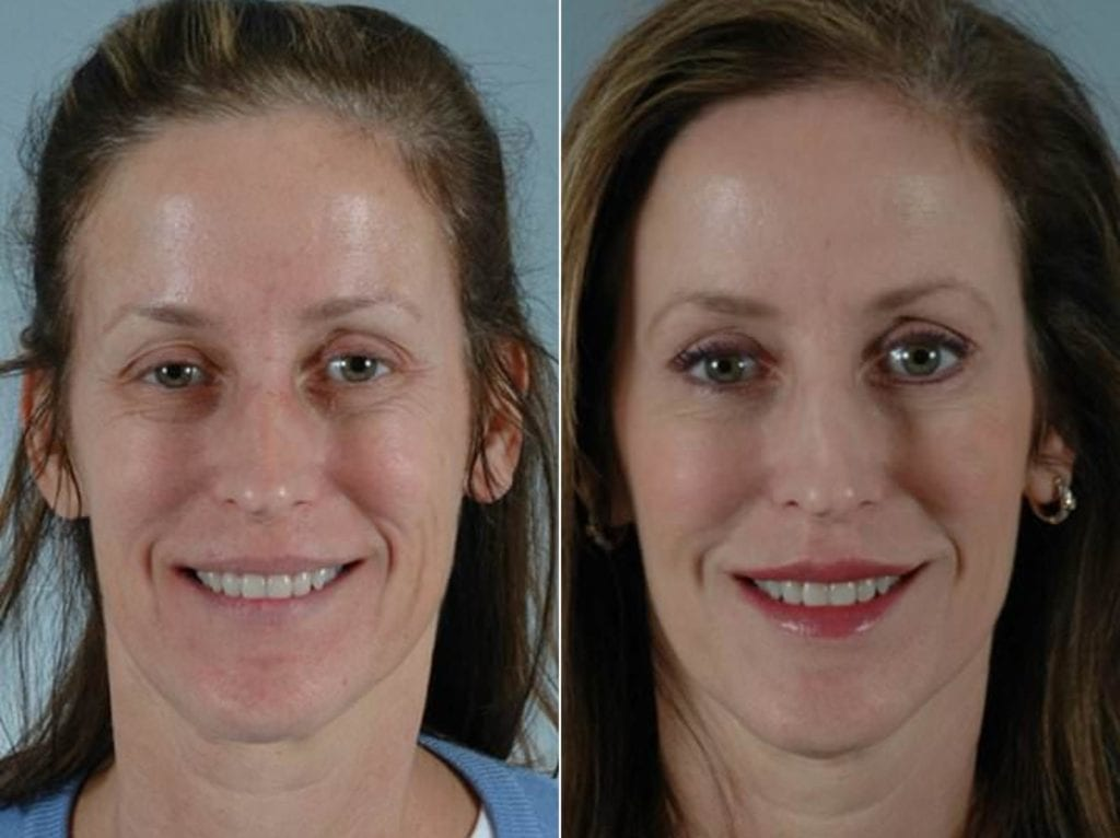 Botox Before and After Photos in Plymouth, Pennsylvania, Patient 3670