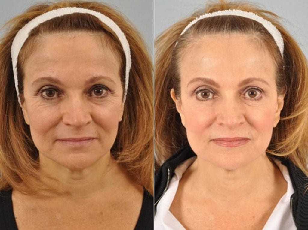 Botox Before and After Photos in Plymouth, Pennsylvania, Patient 3740