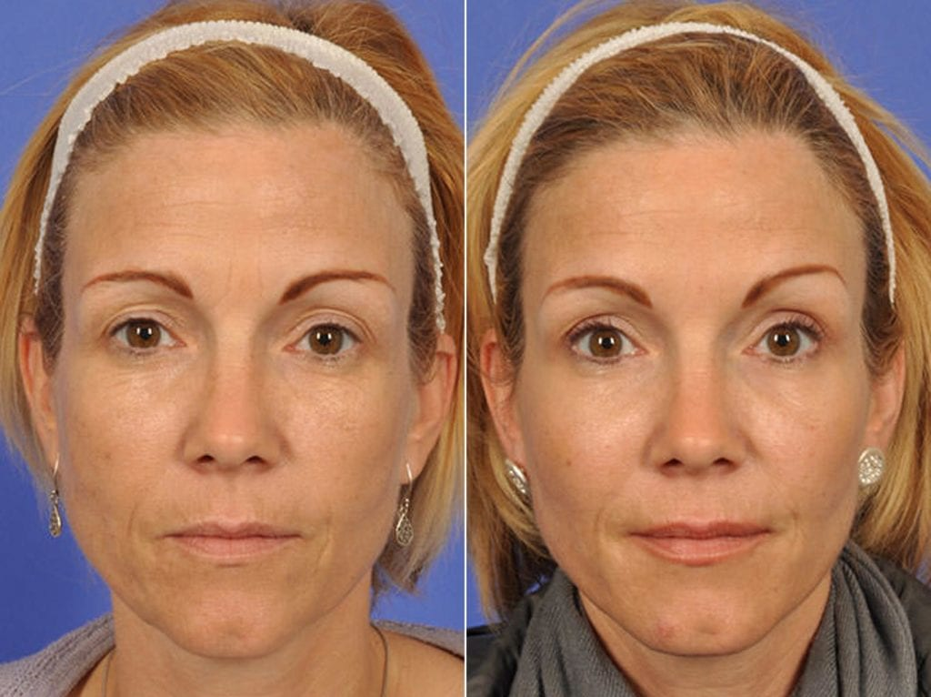 Botox Before and After Photos in Plymouth, Pennsylvania, Patient 3664