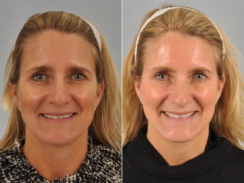 Botox Before and After Photos in Plymouth, Pennsylvania, Patient 3753