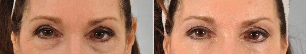 Botox Before and After Photos in Plymouth, Pennsylvania, Patient 3759