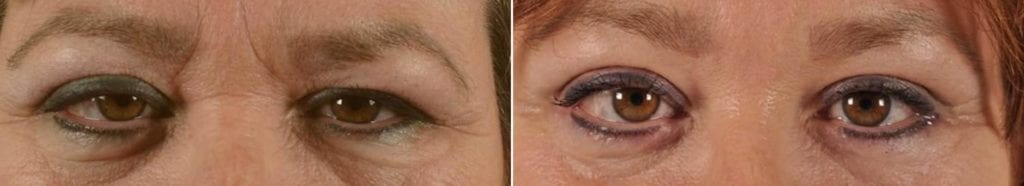 Botox Before and After Photos in Plymouth, Pennsylvania, Patient 3774