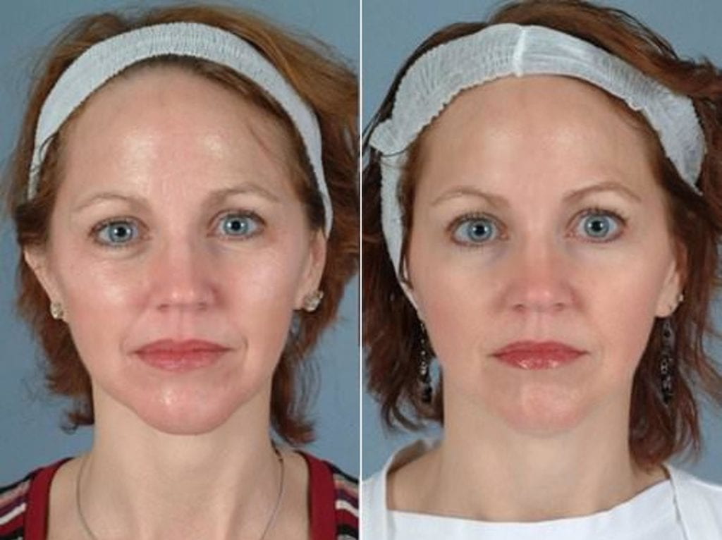 Botox Before and After Photos in Plymouth, Pennsylvania, Patient 3678