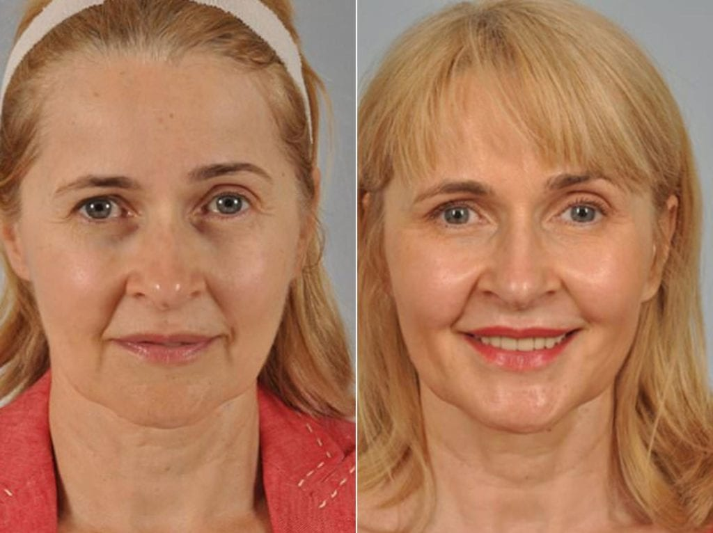 Fillers Before and After Photos in Plymouth, Pennsylvania, Patient 3705