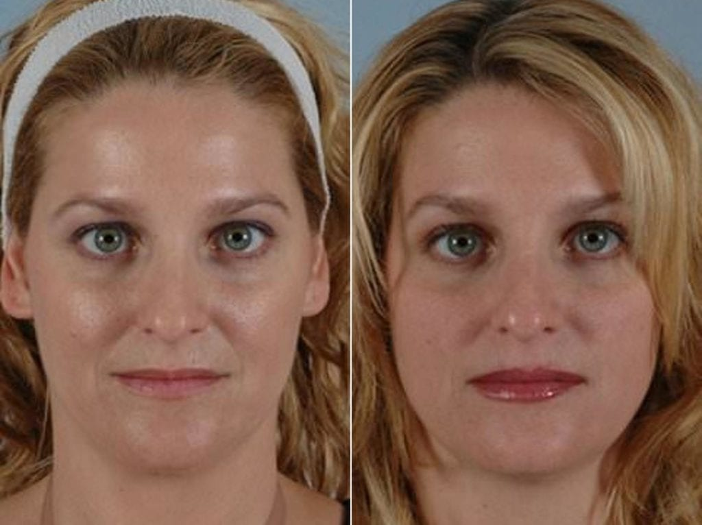 Botox Before and After Photos in Plymouth, Pennsylvania, Patient 3722