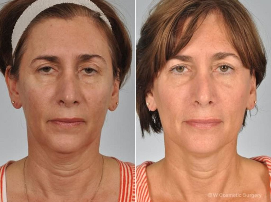 Fillers Before and After Photos in Plymouth, Pennsylvania, Patient 3726