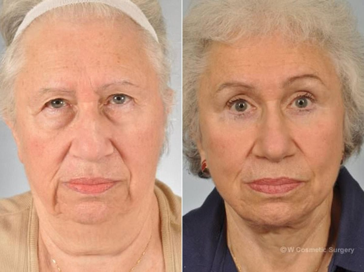 Cosmetic Blepharoplasty Before and After Photos in Plymouth, Pennsylvania, Patient 2891