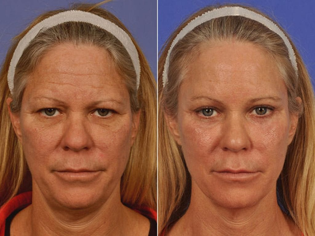 Cosmetic Blepharoplasty Before and After Photos in Plymouth, Pennsylvania, Patient 2841