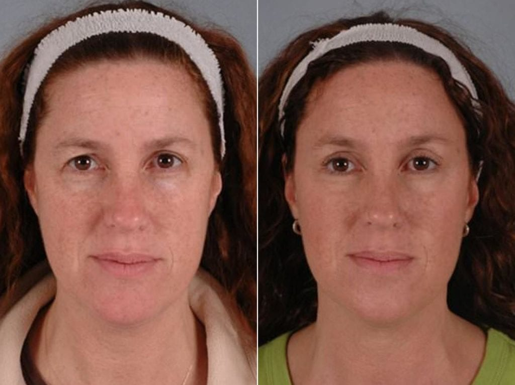 Brow Lift Surgery Before and After Photos in Plymouth, Pennsylvania, Patient 2845