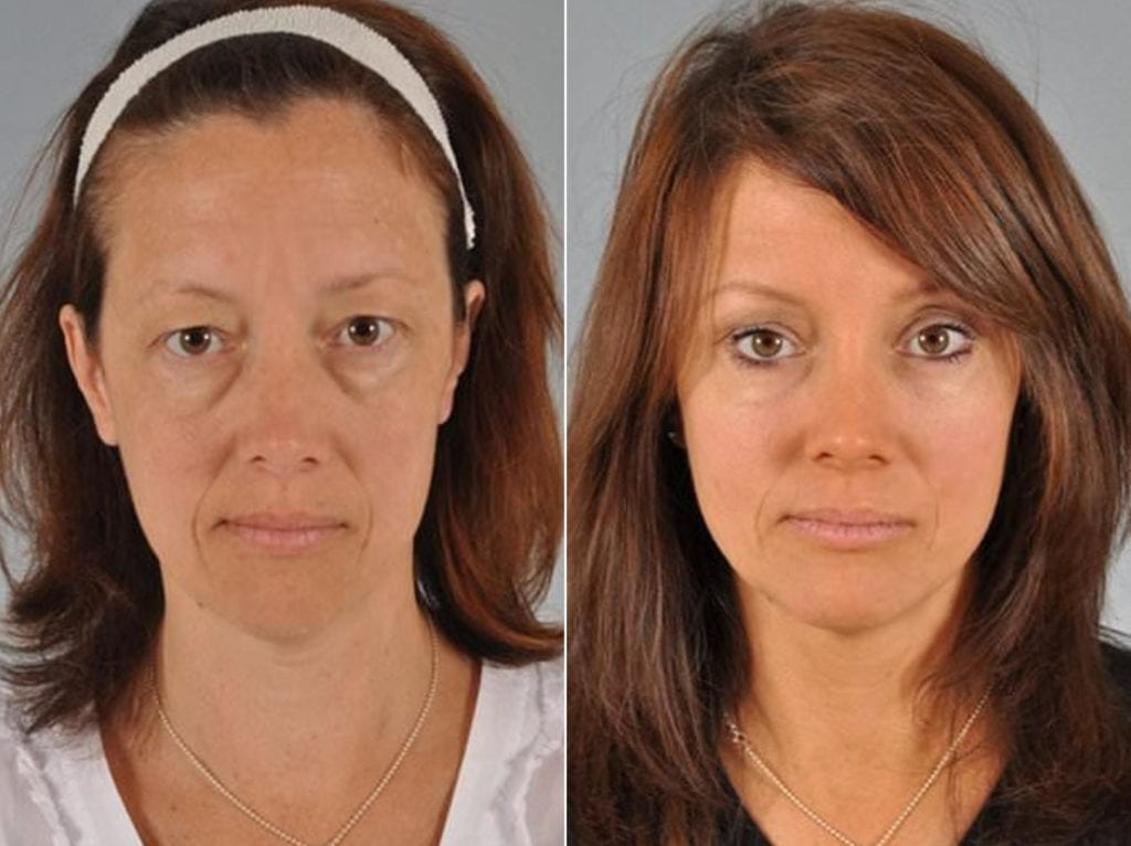 Midface Lift Surgery Before and After Photos in Plymouth, Pennsylvania, Patient 2855