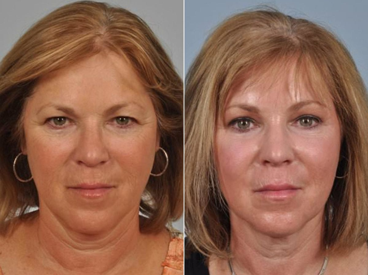 Cosmetic Blepharoplasty Before and After Photos in Plymouth, Pennsylvania, Patient 2864