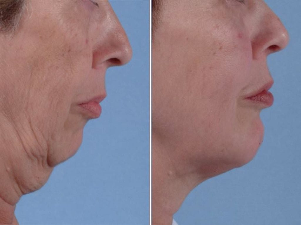 Chin and Cheek Implants Before and After Photos in Plymouth, Pennsylvania, Patient 2939