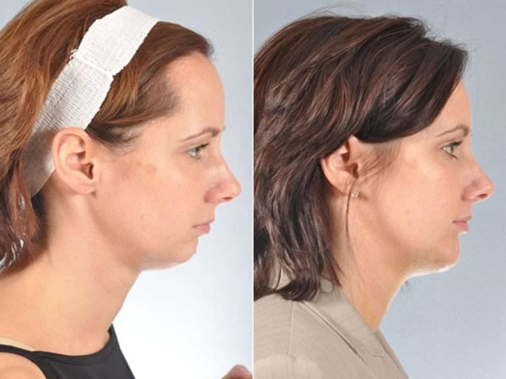 Chin and Cheek Implants Before and After Photos in Plymouth, Pennsylvania, Patient 2959