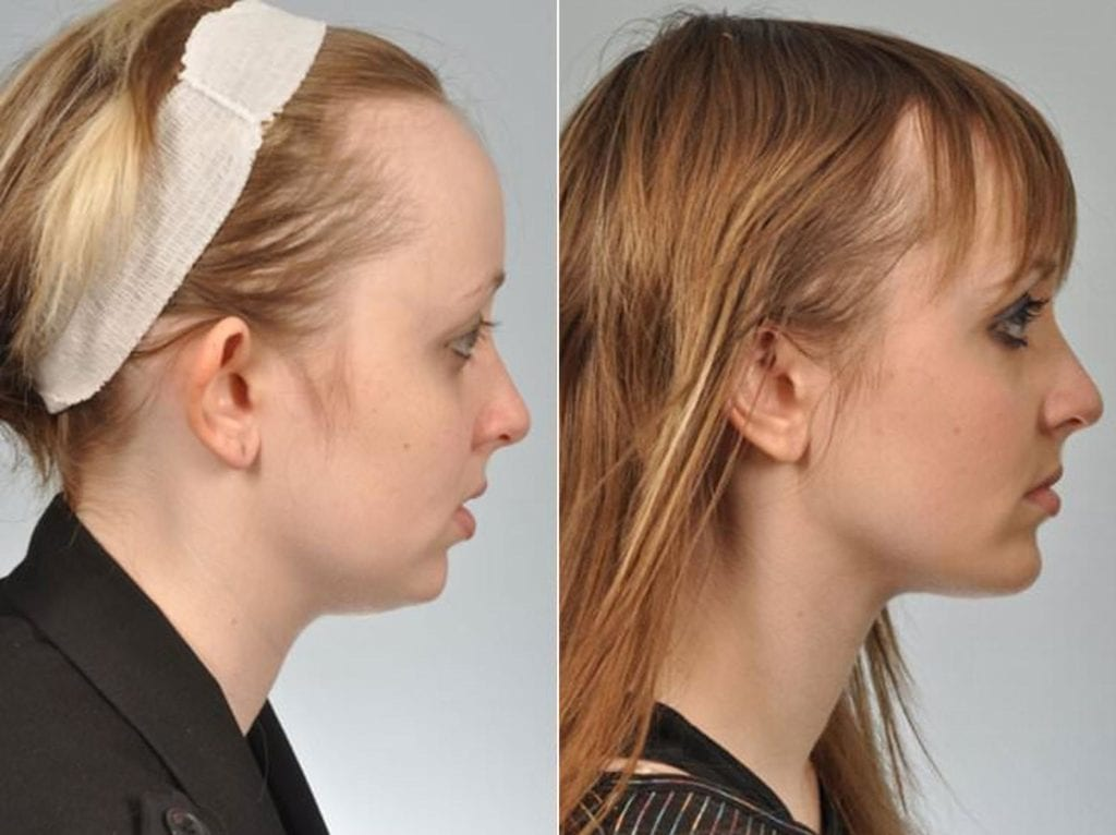 Chin and Cheek Implants Before and After Photos in Plymouth, Pennsylvania, Patient 2899