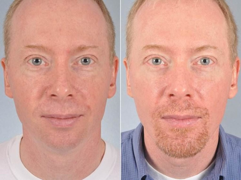 Chin and Cheek Implants Before and After Photos in Plymouth, Pennsylvania, Patient 2915