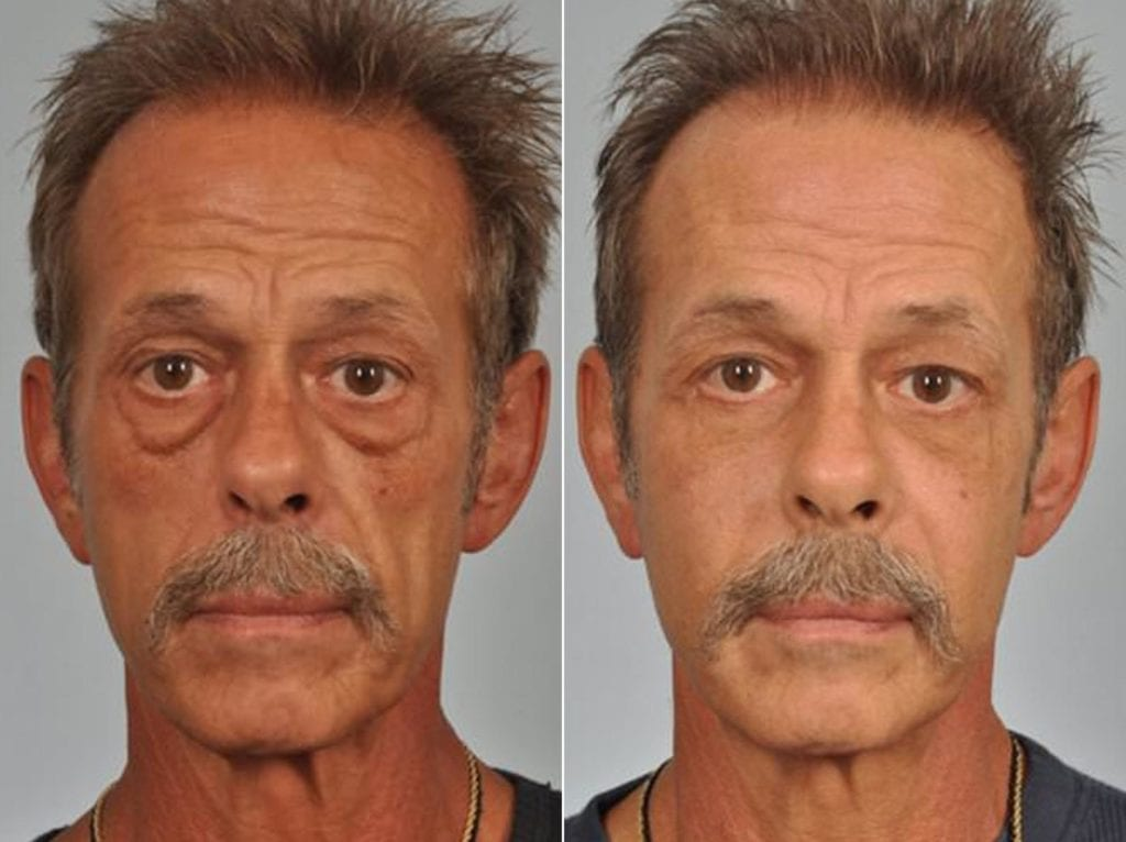 Chin and Cheek Implants Before and After Photos in Plymouth, Pennsylvania, Patient 2925