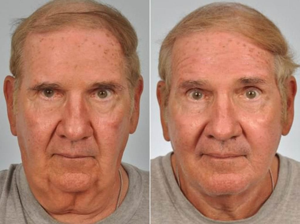 Facelift and Necklift Surgery Before and After Photos in Plymouth, Pennsylvania, Patient 2929