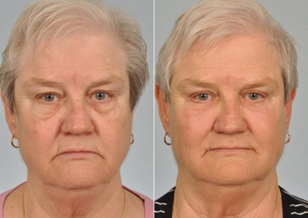 Cosmetic Blepharoplasty Before and After Photos in Plymouth, Pennsylvania, Patient 2783