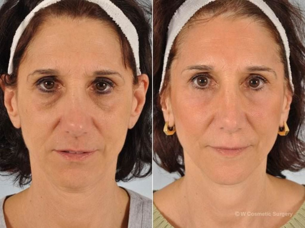 Cosmetic Blepharoplasty Before and After Photos in Plymouth, Pennsylvania, Patient 3468