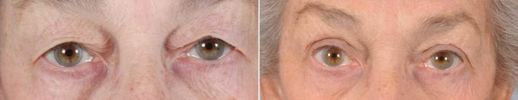 Cosmetic Blepharoplasty Before and After Photos in Plymouth, Pennsylvania, Patient 3520