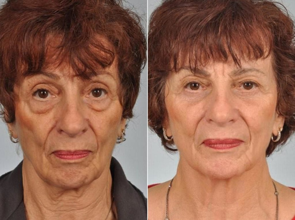 Cosmetic Blepharoplasty Before and After Photos in Plymouth, Pennsylvania, Patient 3525