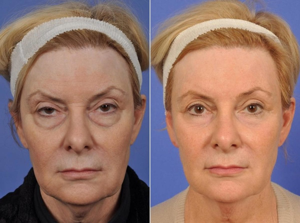 Cosmetic Blepharoplasty Before and After Photos in Plymouth, Pennsylvania, Patient 2795