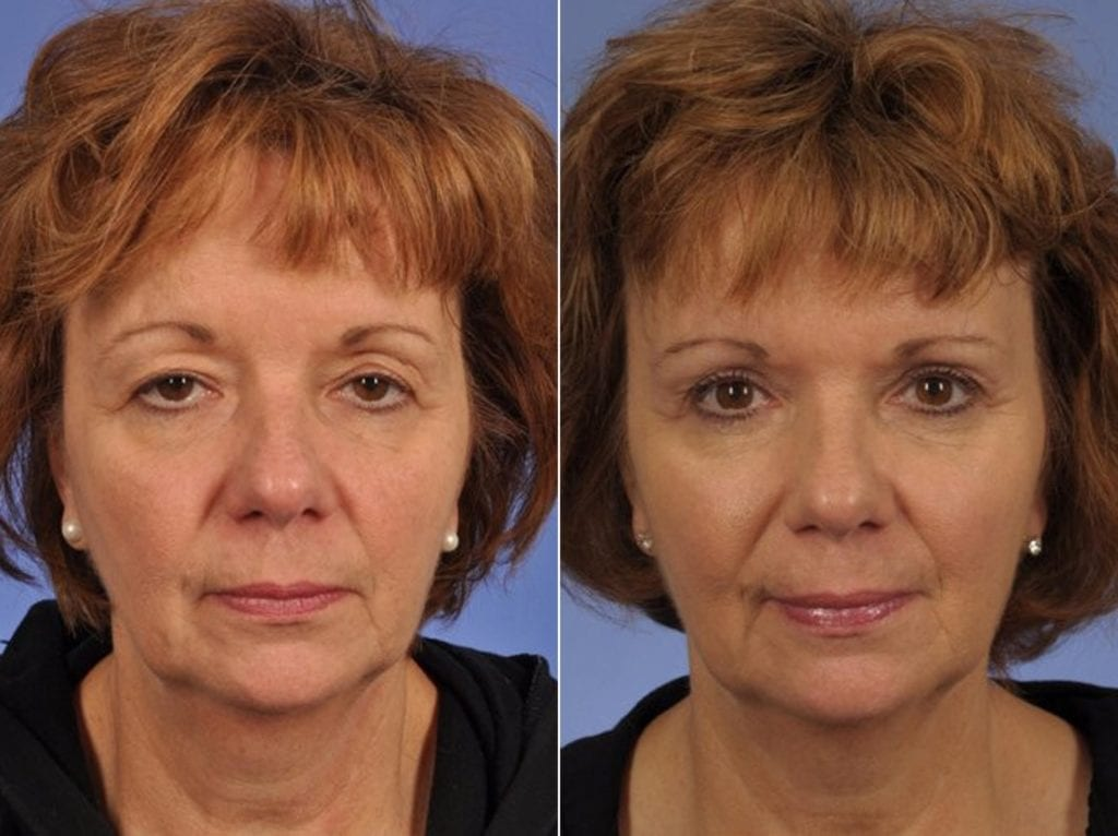 Cosmetic Blepharoplasty Before and After Photos in Plymouth, Pennsylvania, Patient 3570