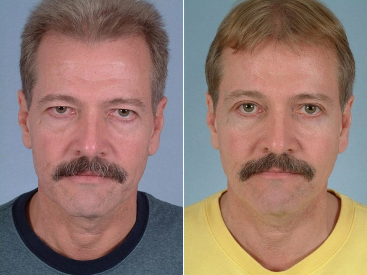 Cosmetic Blepharoplasty Before and After Photos in Plymouth, Pennsylvania, Patient 3686