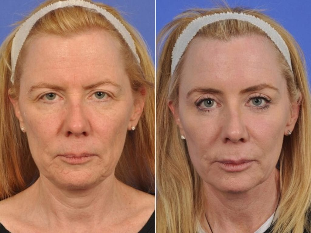 Cosmetic Blepharoplasty Before and After Photos in Plymouth, Pennsylvania, Patient 3902