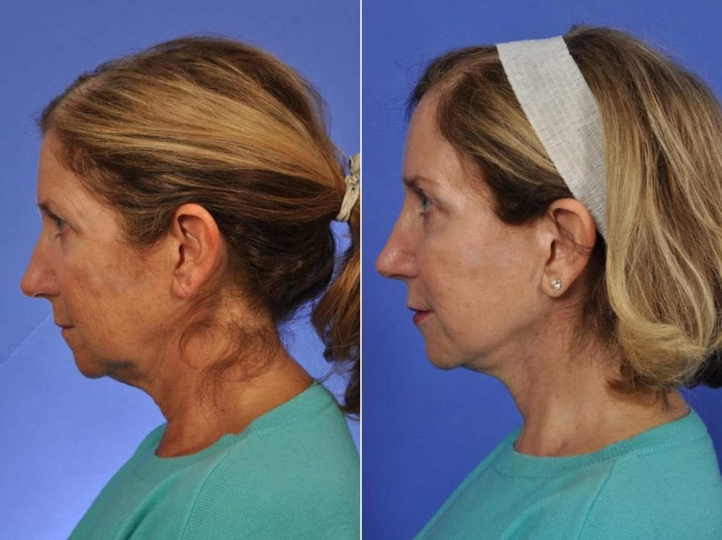 Cosmetic Blepharoplasty Before and After Photos in Plymouth, Pennsylvania, Patient 3230