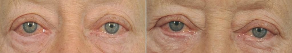Droopy Eyelids – Ptosis Surgery Before and After Photos in Plymouth, Pennsylvania, Patient 3649