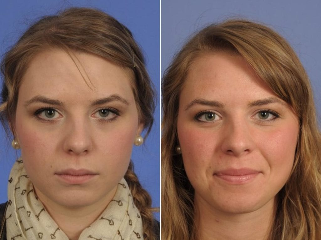 Droopy Eyelids – Ptosis Surgery Before and After Photos in Plymouth, Pennsylvania, Patient 3582