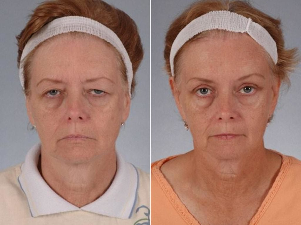 Droopy Eyelids – Ptosis Surgery Before and After Photos in Plymouth, Pennsylvania, Patient 3616