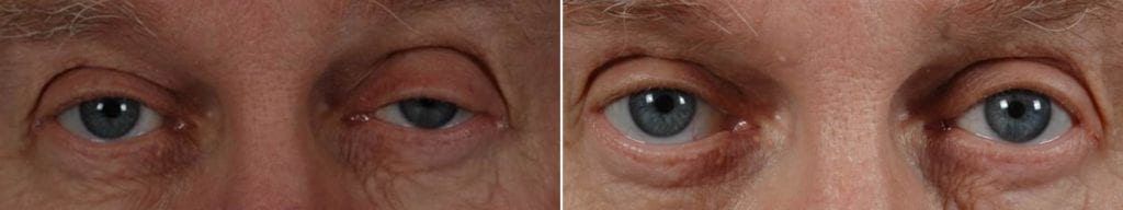 Droopy Eyelids – Ptosis Surgery Before and After Photos in Plymouth, Pennsylvania, Patient 3620
